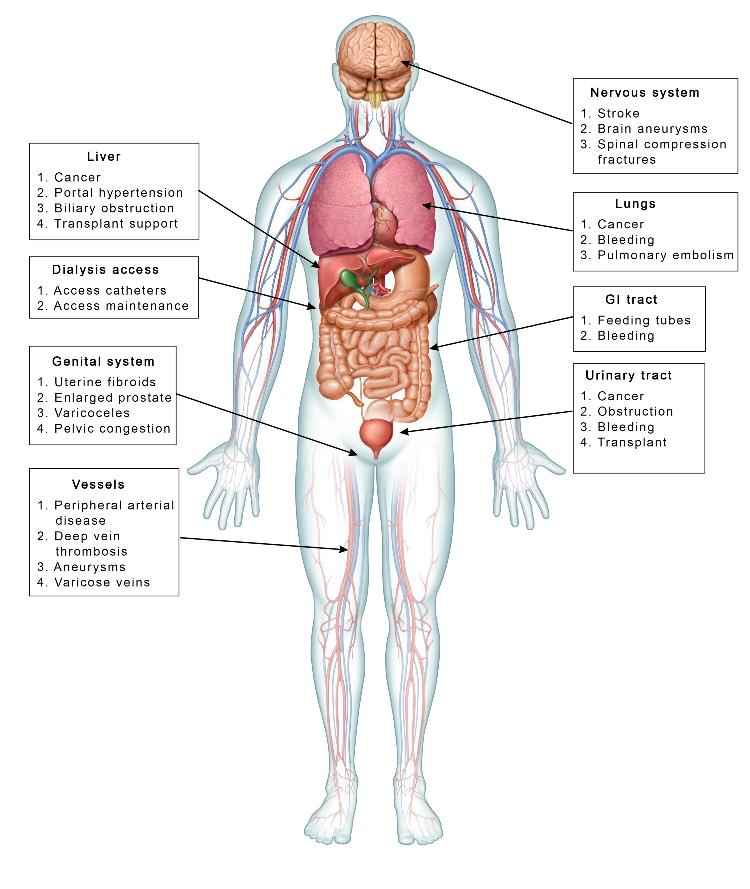 Society of Interventional Radiology- Interventional radiology